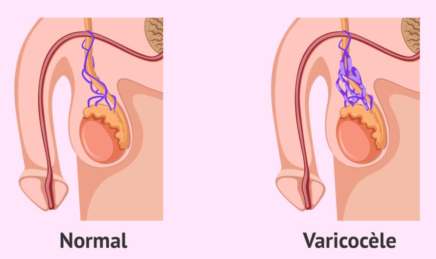 Traitement non chirurgical de l'infertilité masculine causée par les varicocèles