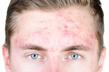 huile-essentielle-contre-acne