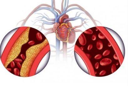 L'hypertension artérielle peut affecter la vie sexuelle