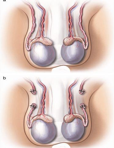 effet-Vasectomie-